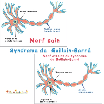 quest-ce-que-le-syndrome-de-guillain-barr-